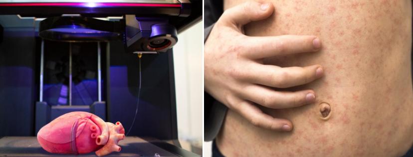 News & prioslav.ru: 3D печать человеческих органов / Возрождение кори
