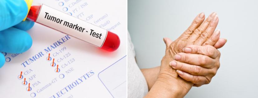 News & prioslav.ru: Анализ крови для выявления рака молочной железы / Реверсивный артрит