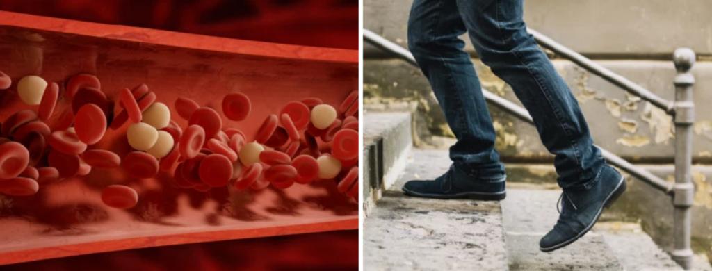 News @ prioslav.ru: Улучшается кровообращение / Ходить становится легче